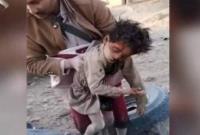 بمباران یمن توسط جنگندههای متجاوز سعودی-آمریکایی